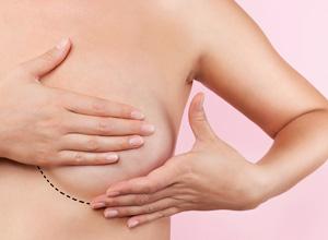Cirurgia para reconstrução mamária em vítima de câncer não é procedimento estético