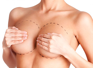 Defeito em cirurgia de mamoplastia gera danos morais