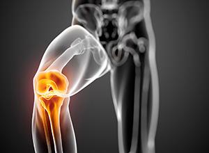 Paciente que ficou com metal no joelho após cirurgia será indenizado por danos morais