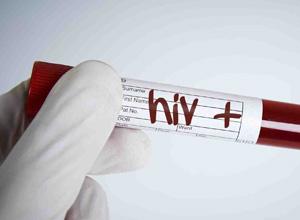 Quarta Turma condena homem a indenizar ex-companheira por transmissão do vírus HIV