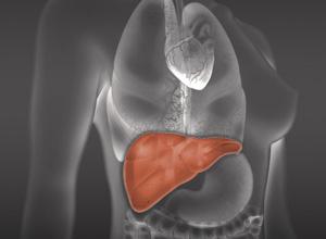 Plano de saúde indenizará por recusa de cobertura de transplante de fígado